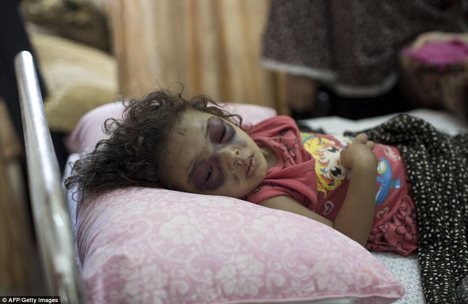 Gaza-girl-injured
